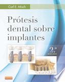 Libro de Prótesis Dental Sobre Implantes