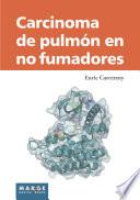 Libro de Carcinoma De Pulmón En No Fumadores
