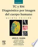 Libro de Tc Y Rm. Diagnóstico Por Imagen Del Cuerpo Humano
