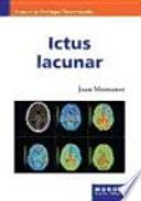 Libro de Ictus Lacunar