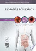 Libro de Esofagitis Eosinofílica