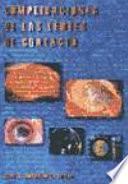Libro de Complicaciones De Las Lentes De Contacto